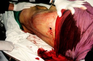 Exit Wound in Mohammed's Back, Photo by Salma aDeb'i B'Tselem